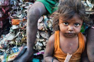 Malnourished children looking